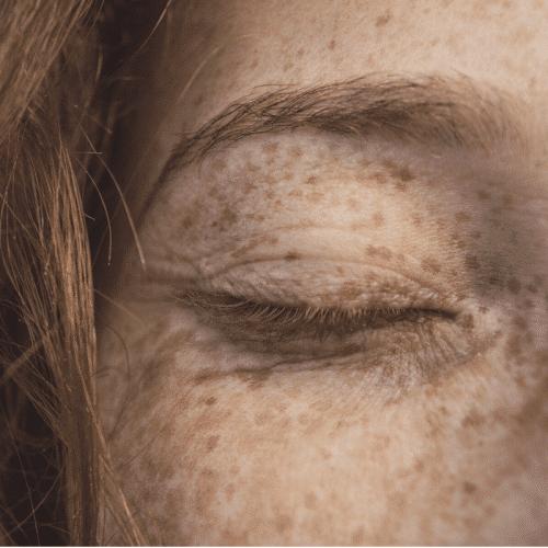 Differents types de peau et ayurveda